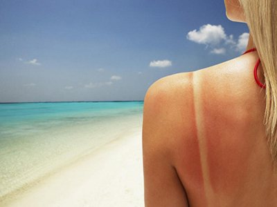 Солнечный ожог: что делать и чем лечить солнечные ожоги?