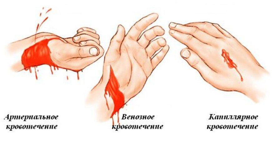 типы кровотечений